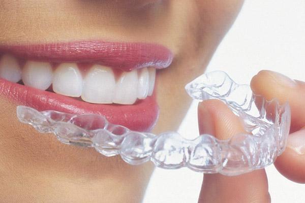 Metal-free braces